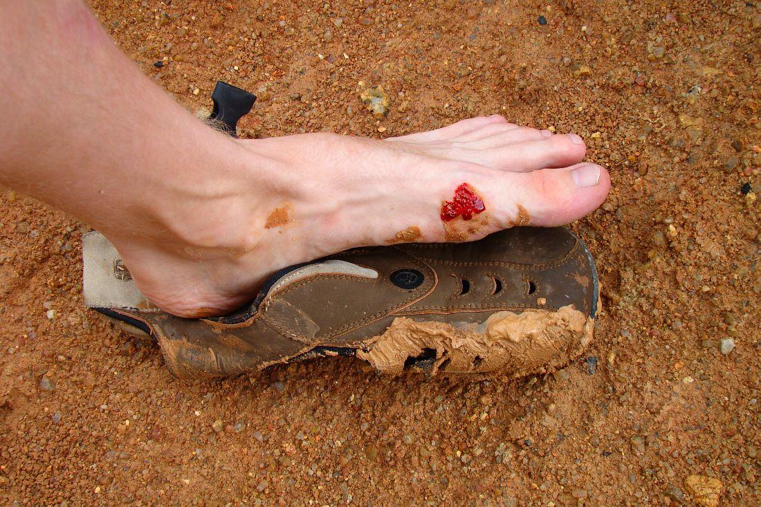 Прорыв ботинка