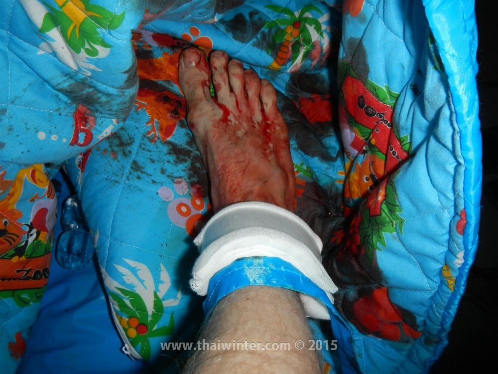 Моя нога в крови в машине скорой помощи по пути в госпиталь