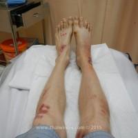 Мои ноги с заживащими ранами