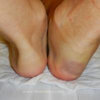 Моя опухшая нога